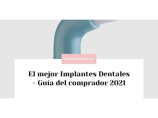 Los Mejores Implantes Dentales – Guía de compra, Opiniones y Comparativa del 2021 (España)